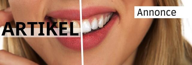 Tandblegning er stadig in